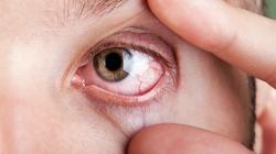 علت درد چشم چیست؟ 10 دلیل اصلی درد چشمان + راه درمان | پزشکی